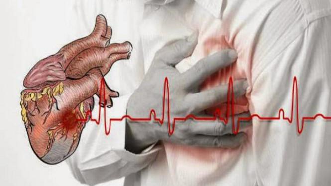 Hasil gambar untuk Obat Katup Jantung Rusak